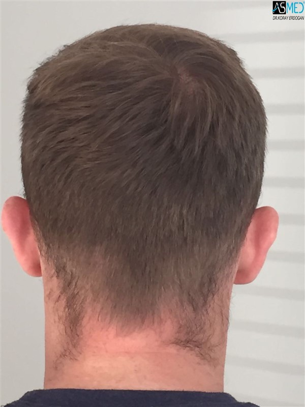https://www.hairtransplantfue.org/asmed-hair-transplant-result/upload/NORWOOD2/3705-grafts-FUE/1year5months/V2_2017-05-08-PHOTO-00000059aaa.jpg