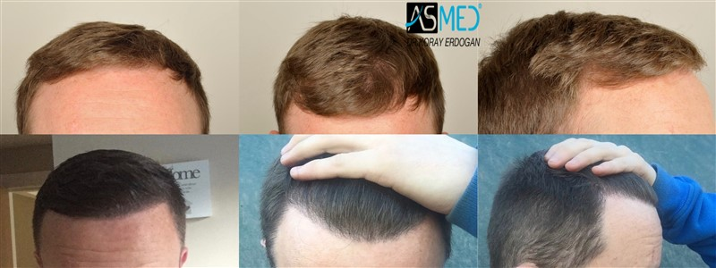 Dr Koray Erdogan - 3705 grafts FUE