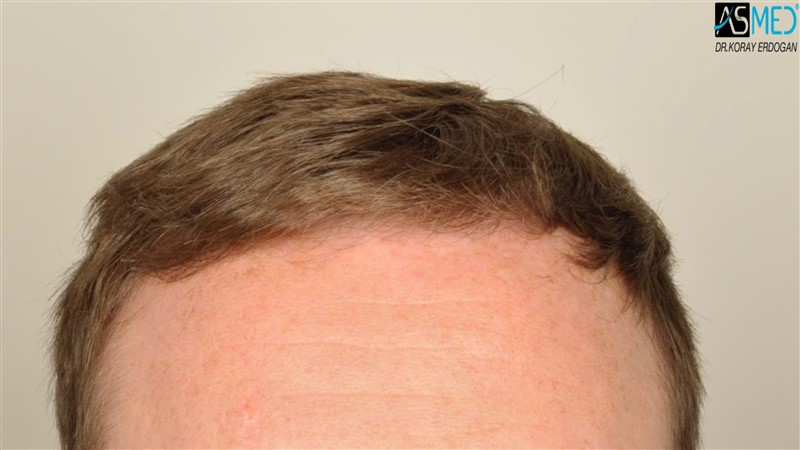 //www.hairtransplantfue.org/asmed-hair-transplant-result/upload/NORWOOD2/3705-grafts-FUE/before/V2__DSC9170aaa.jpg
