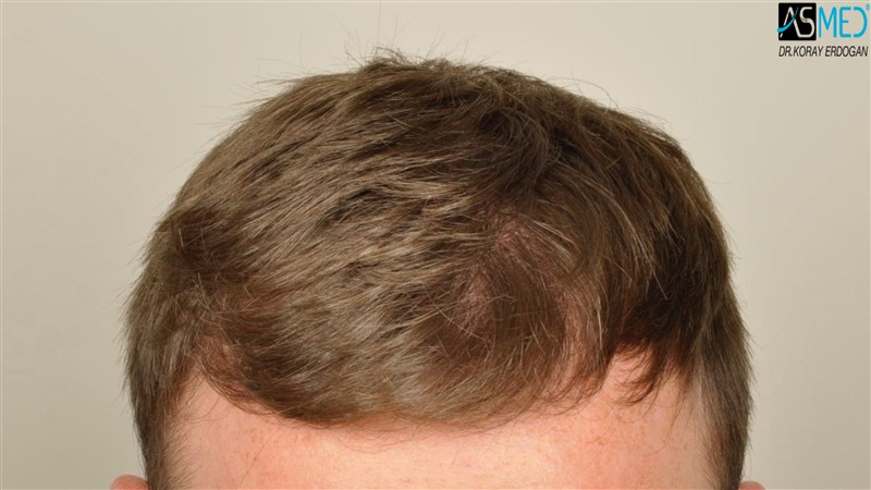 //www.hairtransplantfue.org/asmed-hair-transplant-result/upload/NORWOOD2/3705-grafts-FUE/before/V2__DSC9171aaa.jpg