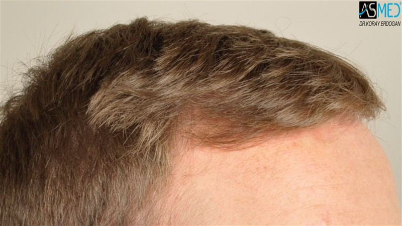 //www.hairtransplantfue.org/asmed-hair-transplant-result/upload/NORWOOD2/3705-grafts-FUE/before/V2__DSC9172aaa.jpg