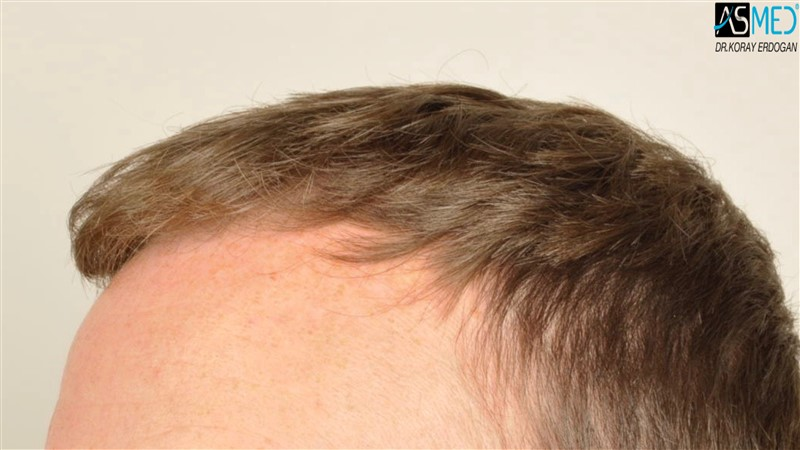 //www.hairtransplantfue.org/asmed-hair-transplant-result/upload/NORWOOD2/3705-grafts-FUE/before/V2__DSC9174aaa.jpg