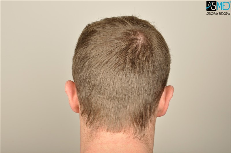//www.hairtransplantfue.org/asmed-hair-transplant-result/upload/NORWOOD2/3705-grafts-FUE/before/V2__DSC9176aaa.jpg