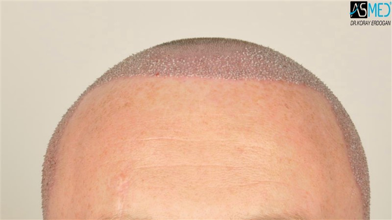 //www.hairtransplantfue.org/asmed-hair-transplant-result/upload/NORWOOD2/3705-grafts-FUE/operation/V2__DSC9379aaa.jpg