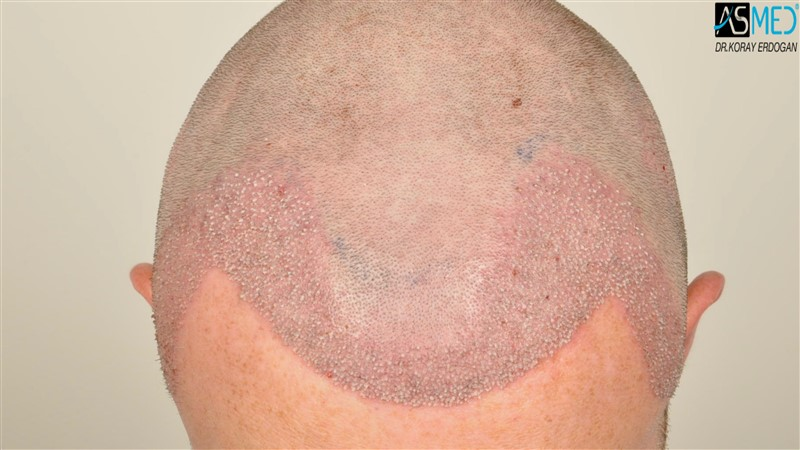 //www.hairtransplantfue.org/asmed-hair-transplant-result/upload/NORWOOD2/3705-grafts-FUE/operation/V2__DSC9380aaa.jpg