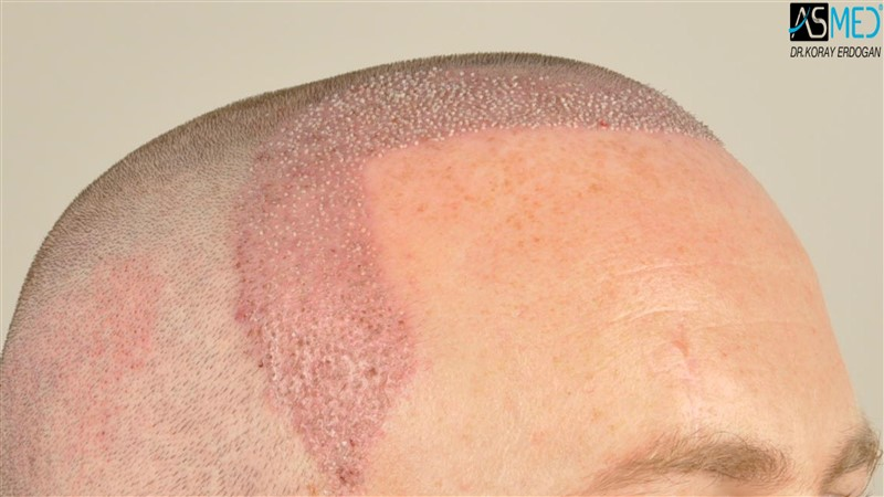 //www.hairtransplantfue.org/asmed-hair-transplant-result/upload/NORWOOD2/3705-grafts-FUE/operation/V2__DSC9381aaa.jpg