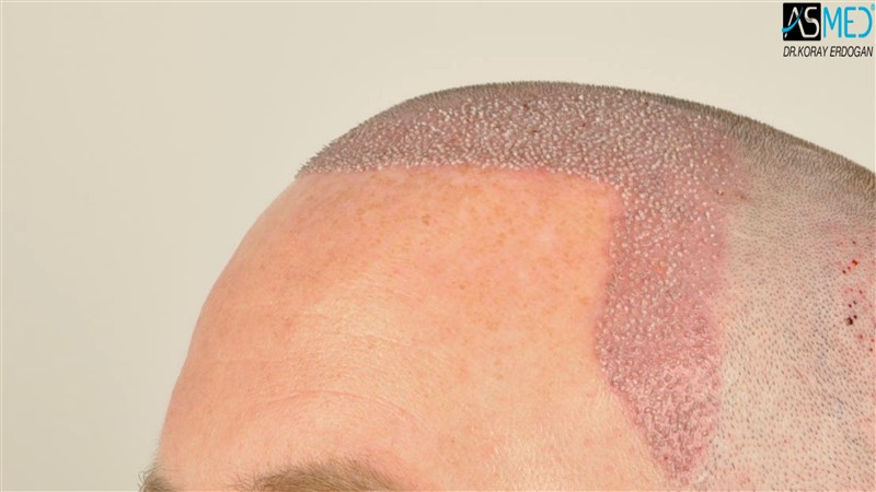 //www.hairtransplantfue.org/asmed-hair-transplant-result/upload/NORWOOD2/3705-grafts-FUE/operation/V2__DSC9383aaa.jpg
