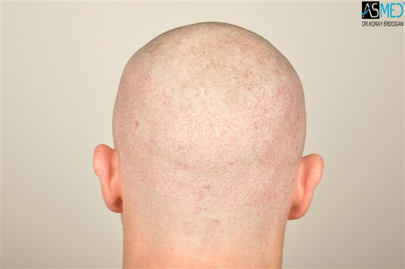 //www.hairtransplantfue.org/asmed-hair-transplant-result/upload/NORWOOD2/3705-grafts-FUE/operation/V2__DSC9385aaa.jpg