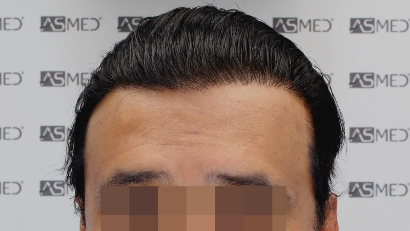https://www.hairtransplantfue.org/asmed-hair-transplant-result/upload/NORWOOD2/5033-grafts-FUE/13months/C1_V2.jpg