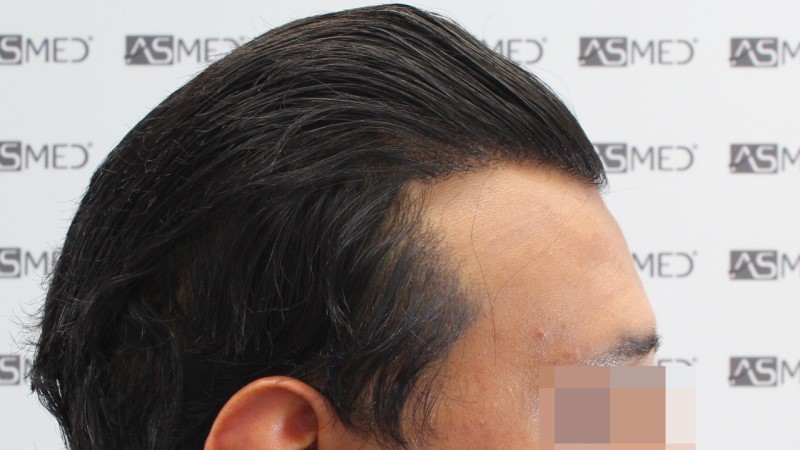 https://www.hairtransplantfue.org/asmed-hair-transplant-result/upload/NORWOOD2/5033-grafts-FUE/13months/C2_V2.jpg