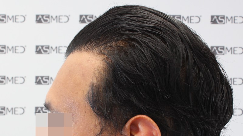 https://www.hairtransplantfue.org/asmed-hair-transplant-result/upload/NORWOOD2/5033-grafts-FUE/13months/C3_V2.jpg