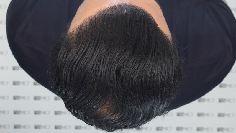 https://www.hairtransplantfue.org/asmed-hair-transplant-result/upload/NORWOOD2/5033-grafts-FUE/13months/C4_V2.jpg