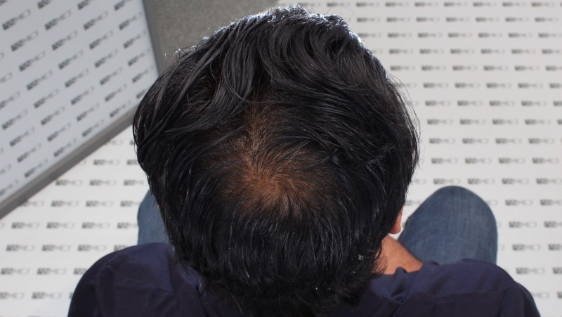 https://www.hairtransplantfue.org/asmed-hair-transplant-result/upload/NORWOOD2/5033-grafts-FUE/13months/C5_V2.jpg