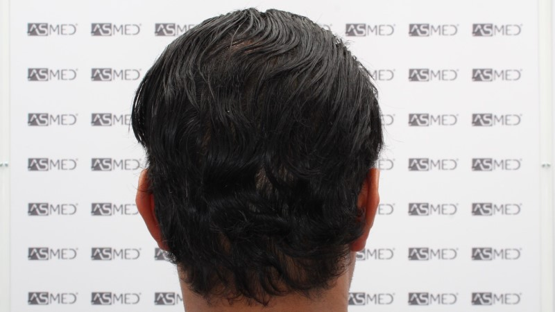 https://www.hairtransplantfue.org/asmed-hair-transplant-result/upload/NORWOOD2/5033-grafts-FUE/13months/C6_V2.jpg
