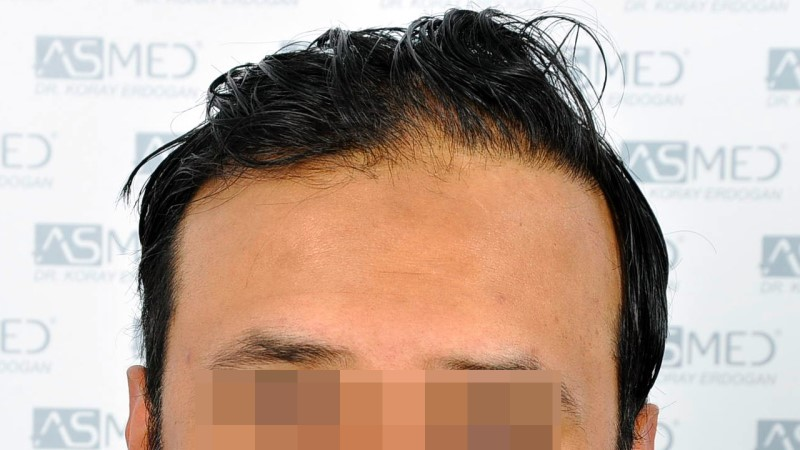 https://www.hairtransplantfue.org/asmed-hair-transplant-result/upload/NORWOOD2/5033-grafts-FUE/before/A1_V2.jpg