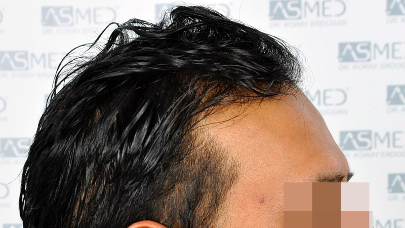 https://www.hairtransplantfue.org/asmed-hair-transplant-result/upload/NORWOOD2/5033-grafts-FUE/before/A2_V2.jpg