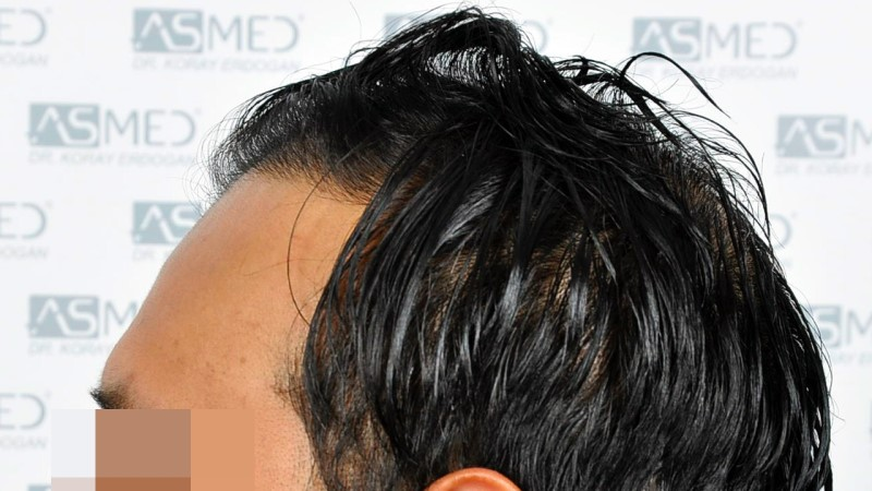 https://www.hairtransplantfue.org/asmed-hair-transplant-result/upload/NORWOOD2/5033-grafts-FUE/before/A3_V2.jpg