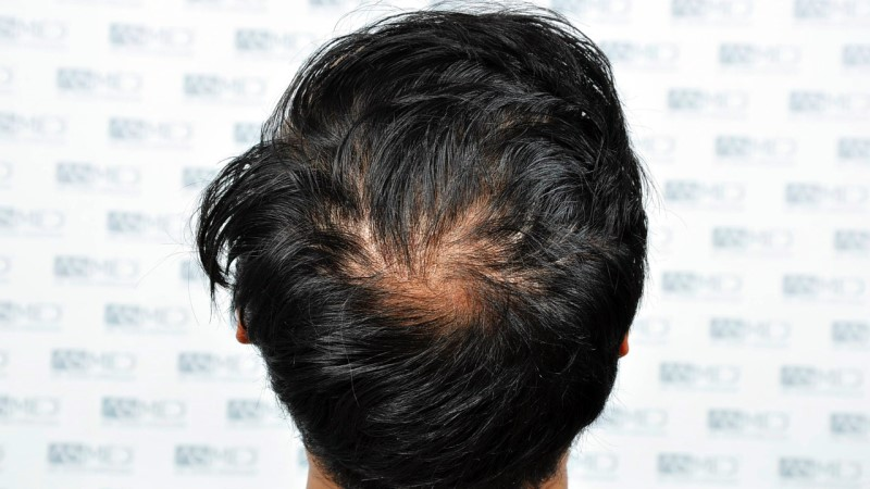 https://www.hairtransplantfue.org/asmed-hair-transplant-result/upload/NORWOOD2/5033-grafts-FUE/before/A5_V2.jpg