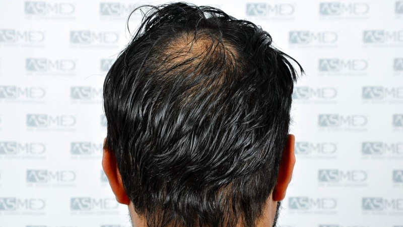 https://www.hairtransplantfue.org/asmed-hair-transplant-result/upload/NORWOOD2/5033-grafts-FUE/before/A6_V2.jpg