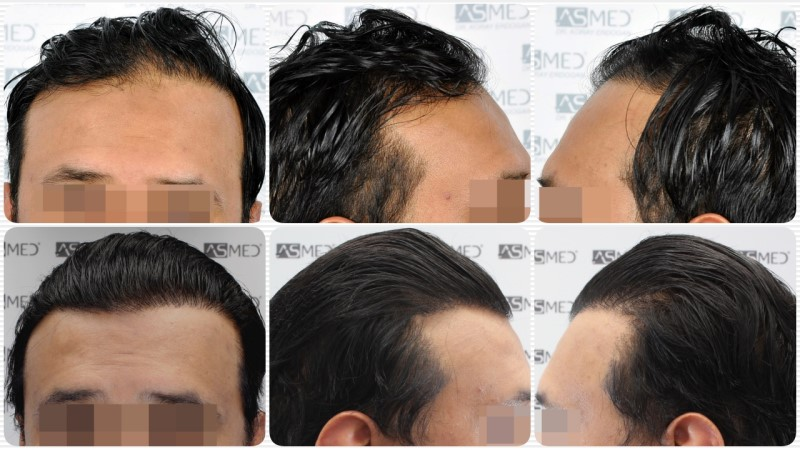 https://www.hairtransplantfue.org/asmed-hair-transplant-result/upload/NORWOOD2/5033-grafts-FUE/collage.jpg