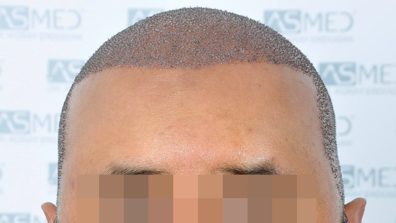 https://www.hairtransplantfue.org/asmed-hair-transplant-result/upload/NORWOOD2/5033-grafts-FUE/operation/B1_V2.jpg