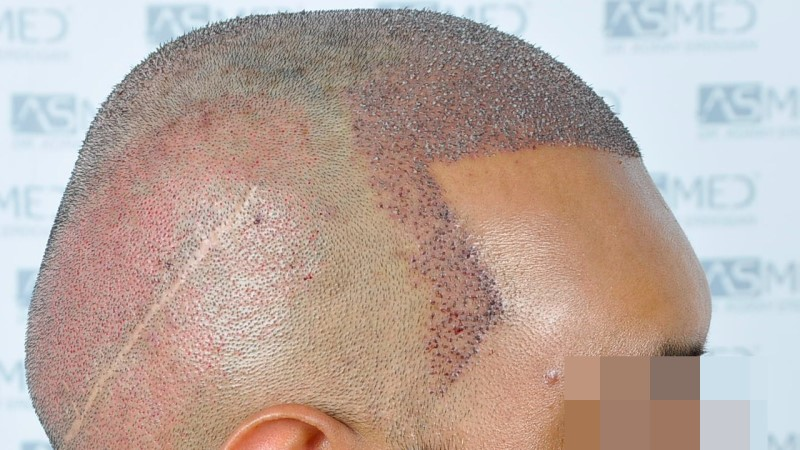 https://www.hairtransplantfue.org/asmed-hair-transplant-result/upload/NORWOOD2/5033-grafts-FUE/operation/B2_V2.jpg