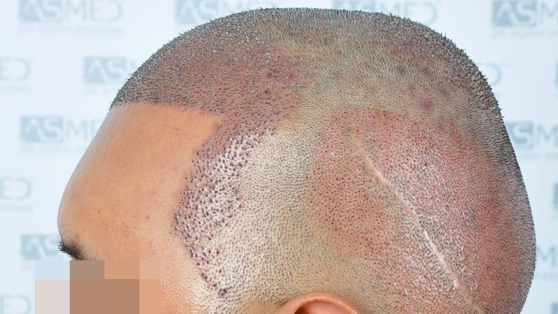https://www.hairtransplantfue.org/asmed-hair-transplant-result/upload/NORWOOD2/5033-grafts-FUE/operation/B3_V2.jpg