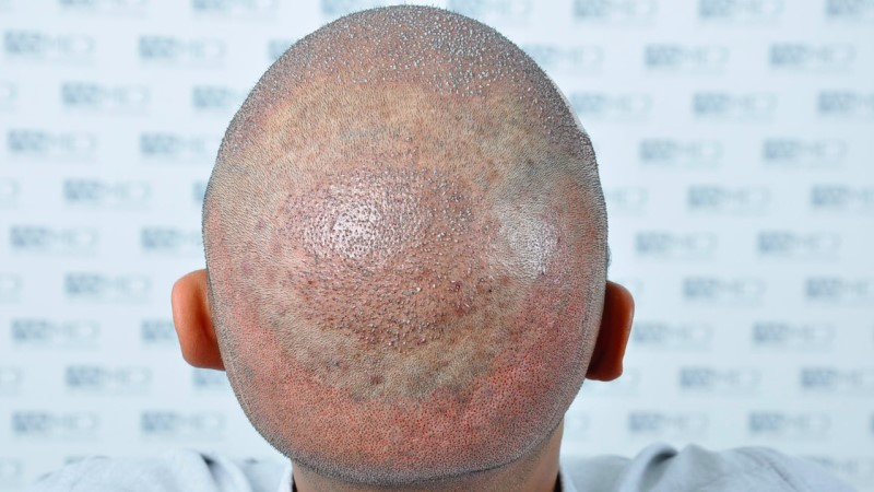 https://www.hairtransplantfue.org/asmed-hair-transplant-result/upload/NORWOOD2/5033-grafts-FUE/operation/B4_V2.jpg