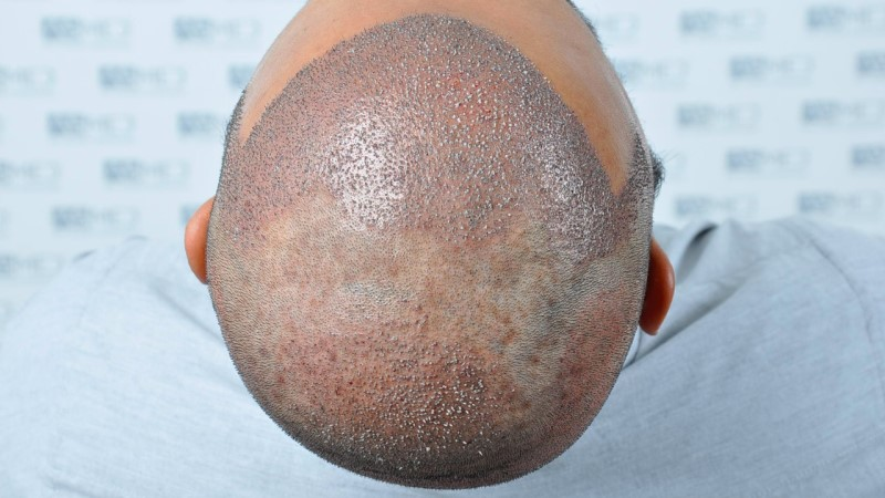 https://www.hairtransplantfue.org/asmed-hair-transplant-result/upload/NORWOOD2/5033-grafts-FUE/operation/B5_V2.jpg