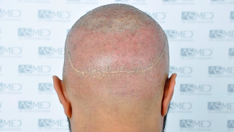 https://www.hairtransplantfue.org/asmed-hair-transplant-result/upload/NORWOOD2/5033-grafts-FUE/operation/B6_V2.jpg