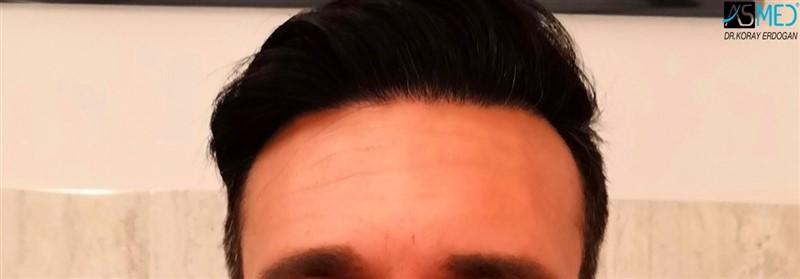 https://www.hairtransplantfue.org/asmed-hair-transplant-result/upload/NORWOOD2/upload/64/1_new.jpg