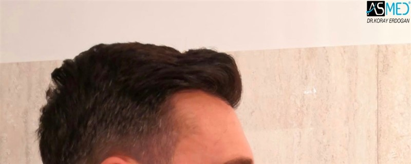 https://www.hairtransplantfue.org/asmed-hair-transplant-result/upload/NORWOOD2/upload/64/2_new.jpg