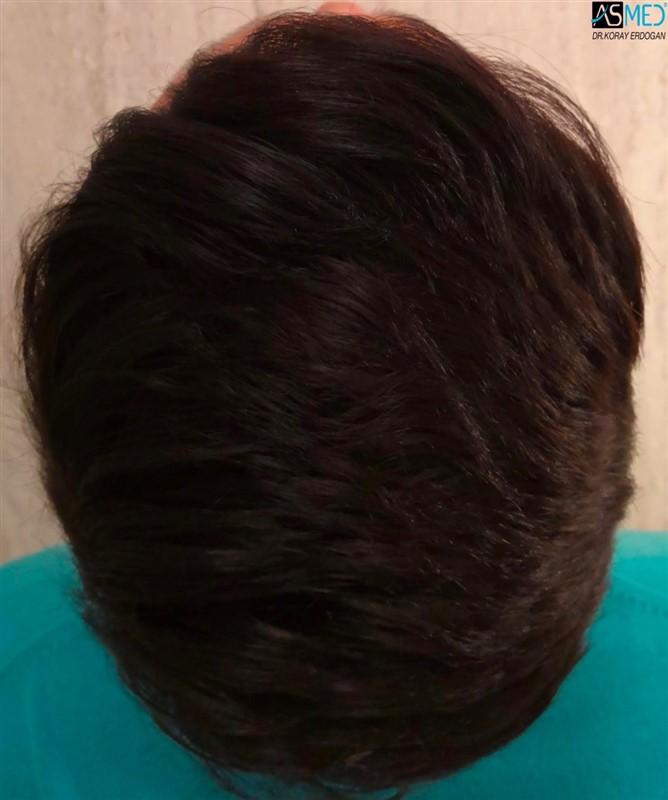 https://www.hairtransplantfue.org/asmed-hair-transplant-result/upload/NORWOOD2/upload/64/4_new.jpg