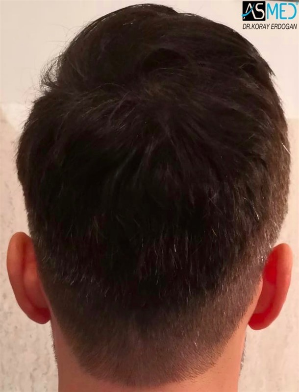 https://www.hairtransplantfue.org/asmed-hair-transplant-result/upload/NORWOOD2/upload/64/5_new.jpg