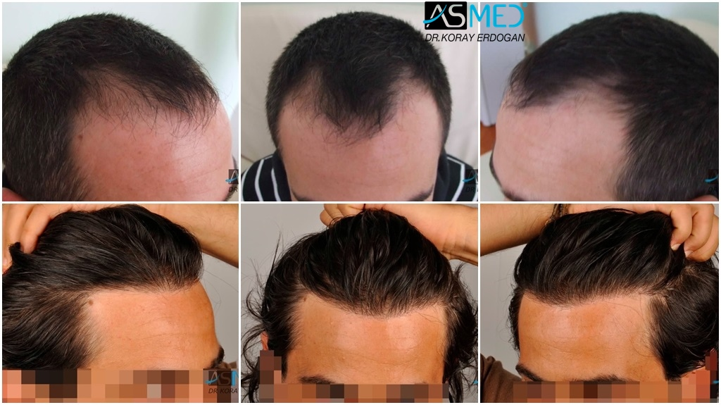 Dr Koray Erdogan - 2000 grafts FUE + 800 grafts FUE