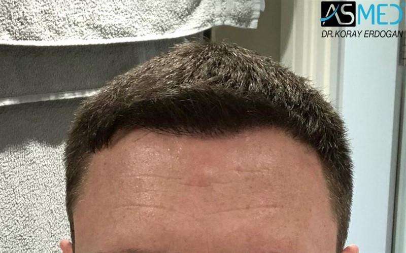 https://www.hairtransplantfue.org/asmed-hair-transplant-result/upload/Norwood3/2004-grafts-FUE/1year/af1/1_new.jpg