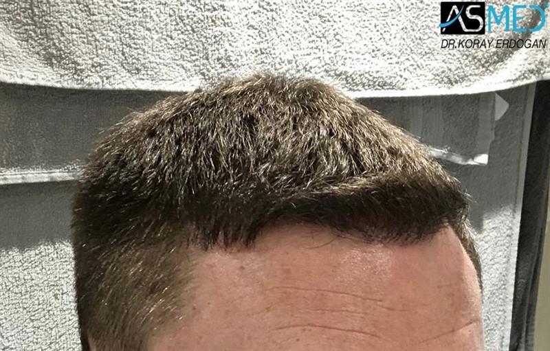 https://www.hairtransplantfue.org/asmed-hair-transplant-result/upload/Norwood3/2004-grafts-FUE/1year/af1/2_new.jpg