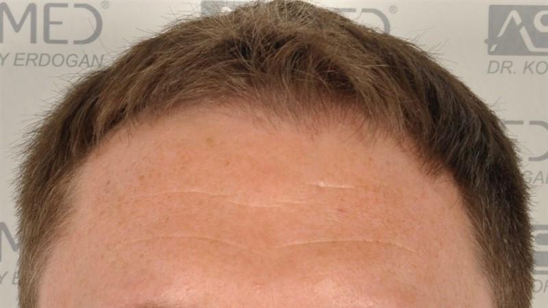 https://www.hairtransplantfue.org/asmed-hair-transplant-result/upload/Norwood3/2004-grafts-FUE/before/1.jpg