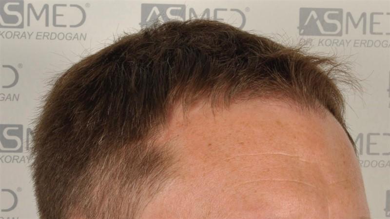 https://www.hairtransplantfue.org/asmed-hair-transplant-result/upload/Norwood3/2004-grafts-FUE/before/before2/_DSC9596.jpg
