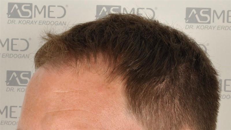 https://www.hairtransplantfue.org/asmed-hair-transplant-result/upload/Norwood3/2004-grafts-FUE/before/before2/_DSC9597.jpg