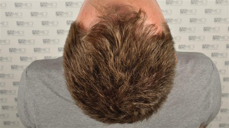 https://www.hairtransplantfue.org/asmed-hair-transplant-result/upload/Norwood3/2004-grafts-FUE/before/before2/_DSC9602.jpg