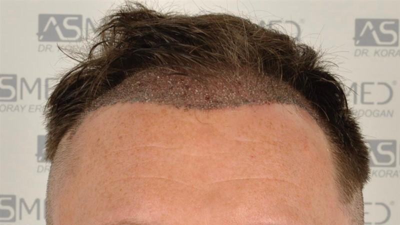 https://www.hairtransplantfue.org/asmed-hair-transplant-result/upload/Norwood3/2004-grafts-FUE/operation/op2/1.jpg