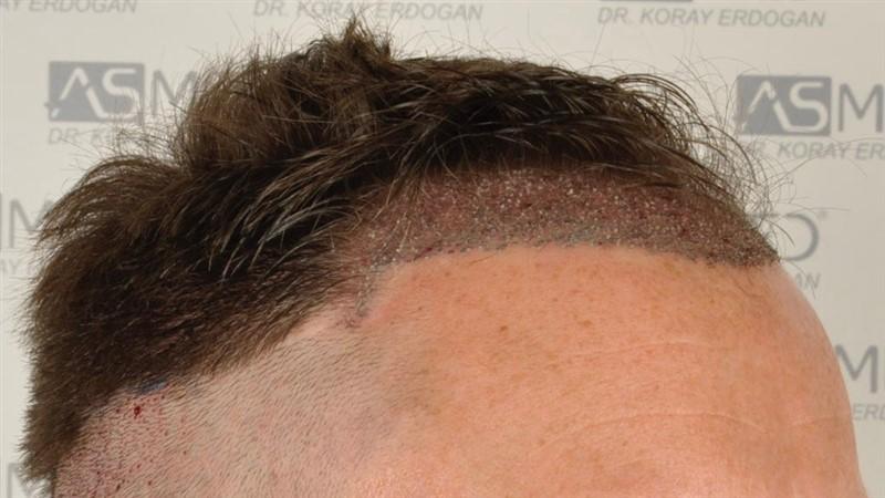 https://www.hairtransplantfue.org/asmed-hair-transplant-result/upload/Norwood3/2004-grafts-FUE/operation/op2/2.jpg