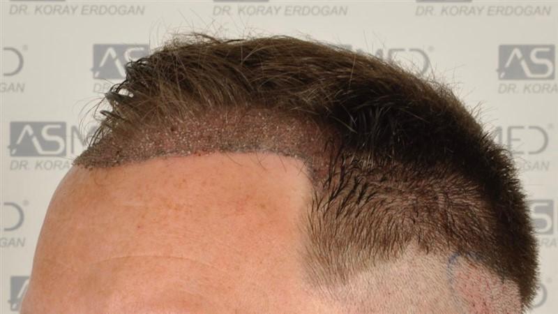 https://www.hairtransplantfue.org/asmed-hair-transplant-result/upload/Norwood3/2004-grafts-FUE/operation/op2/3.jpg