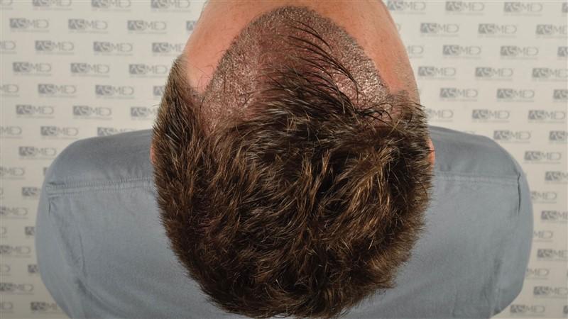https://www.hairtransplantfue.org/asmed-hair-transplant-result/upload/Norwood3/2004-grafts-FUE/operation/op2/4.jpg
