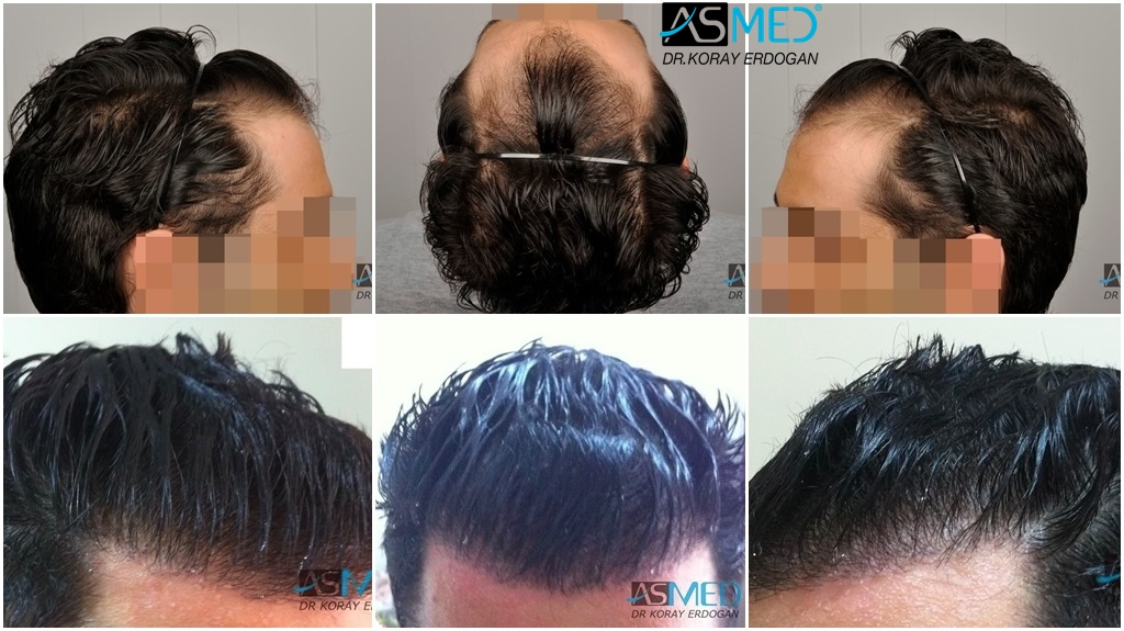 Dr Koray Erdogan - 2100 grafts FUE