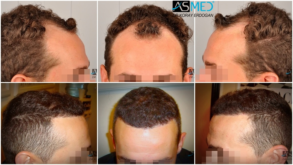 Dr Koray Erdogan - 2300 grafts FUE