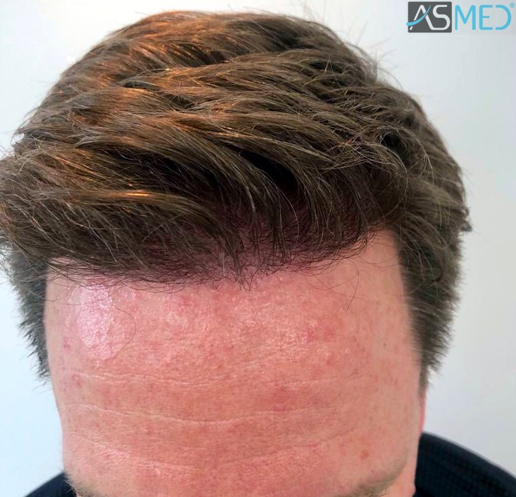 https://www.hairtransplantfue.org/asmed-hair-transplant-result/upload/Norwood3/2450-grafts-FUE/8month/1_V2.jpg