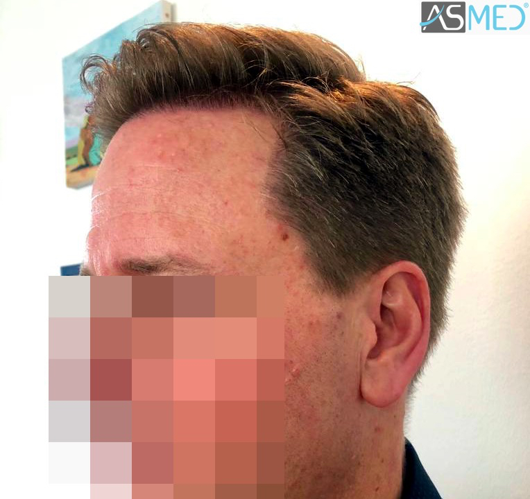 https://www.hairtransplantfue.org/asmed-hair-transplant-result/upload/Norwood3/2450-grafts-FUE/8month/3_V2.jpg