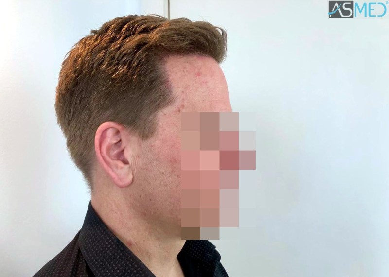 https://www.hairtransplantfue.org/asmed-hair-transplant-result/upload/Norwood3/2450-grafts-FUE/8month/4_V2.jpg